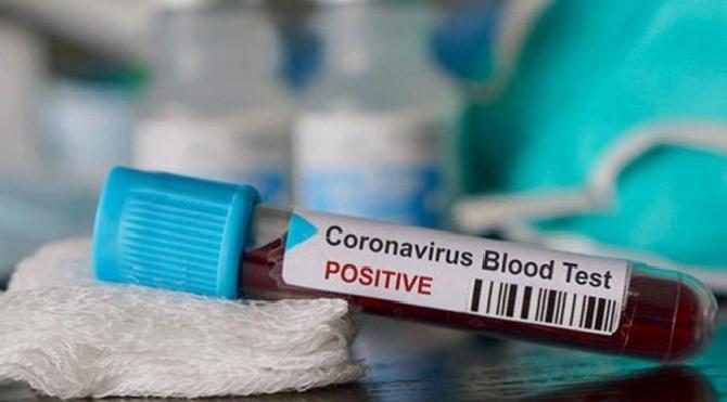 Suriye'de corona virüsünden ölenlerin sayısı yükseldi!
