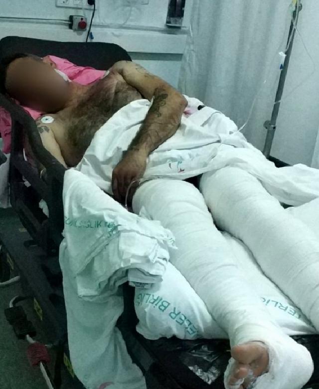Babasının silahlı saldırısında yaralandı