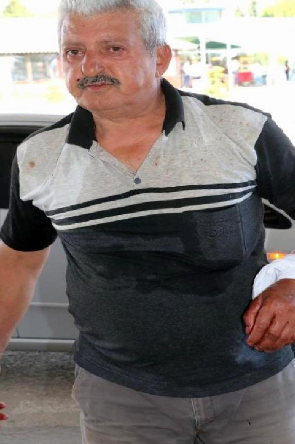 Yaralanan kasap, kendisinin ilk vaka olup olmadığını sordu